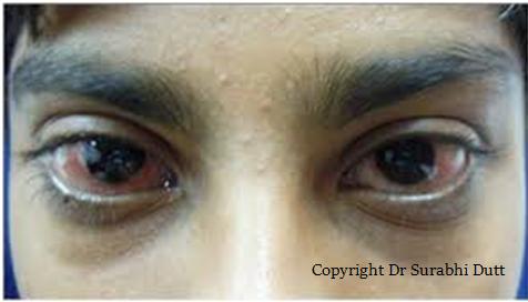 Conjunctivitis-aanya-eye-centre