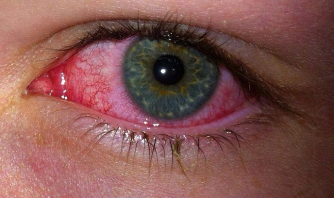smoking affects on eyes