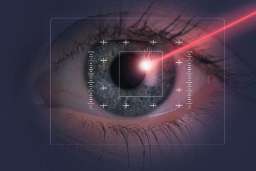 Femto Laser Cataract Surgery