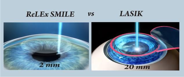 Relex-vs-lasik